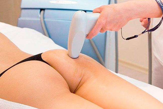 tratamientos para combatir la grasa subcutanea