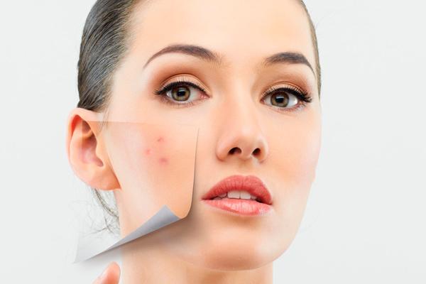 celulitis en la cara