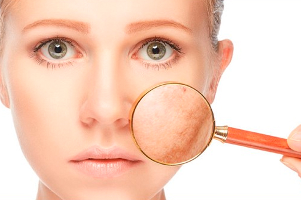 celulitis faciales sintomas