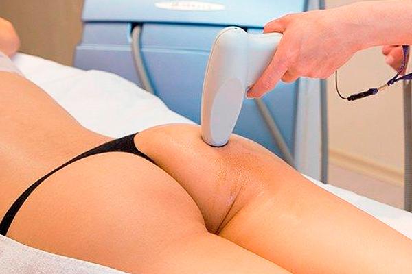 tratamientos anticeluliticos